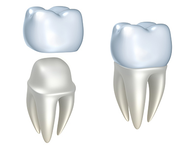 There Are Multiple Types of Dental Crowns, So Which is Best for You?